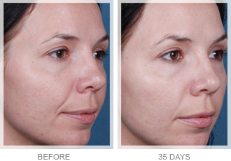 obagi nu derm before and after