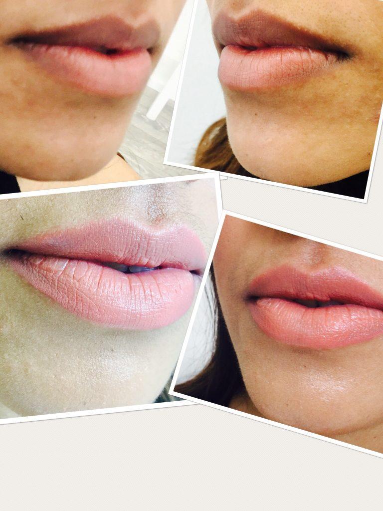 Lip Fillers Leeds City Centre | Lip Augmentation | Face