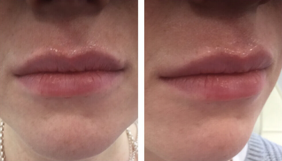 Lip Fillers Leeds City Centre | Lip Augmentation | Face Perfect Clinic
