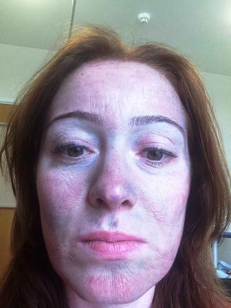 Obagi Blue Peel Treatment Face Perfect Clinic