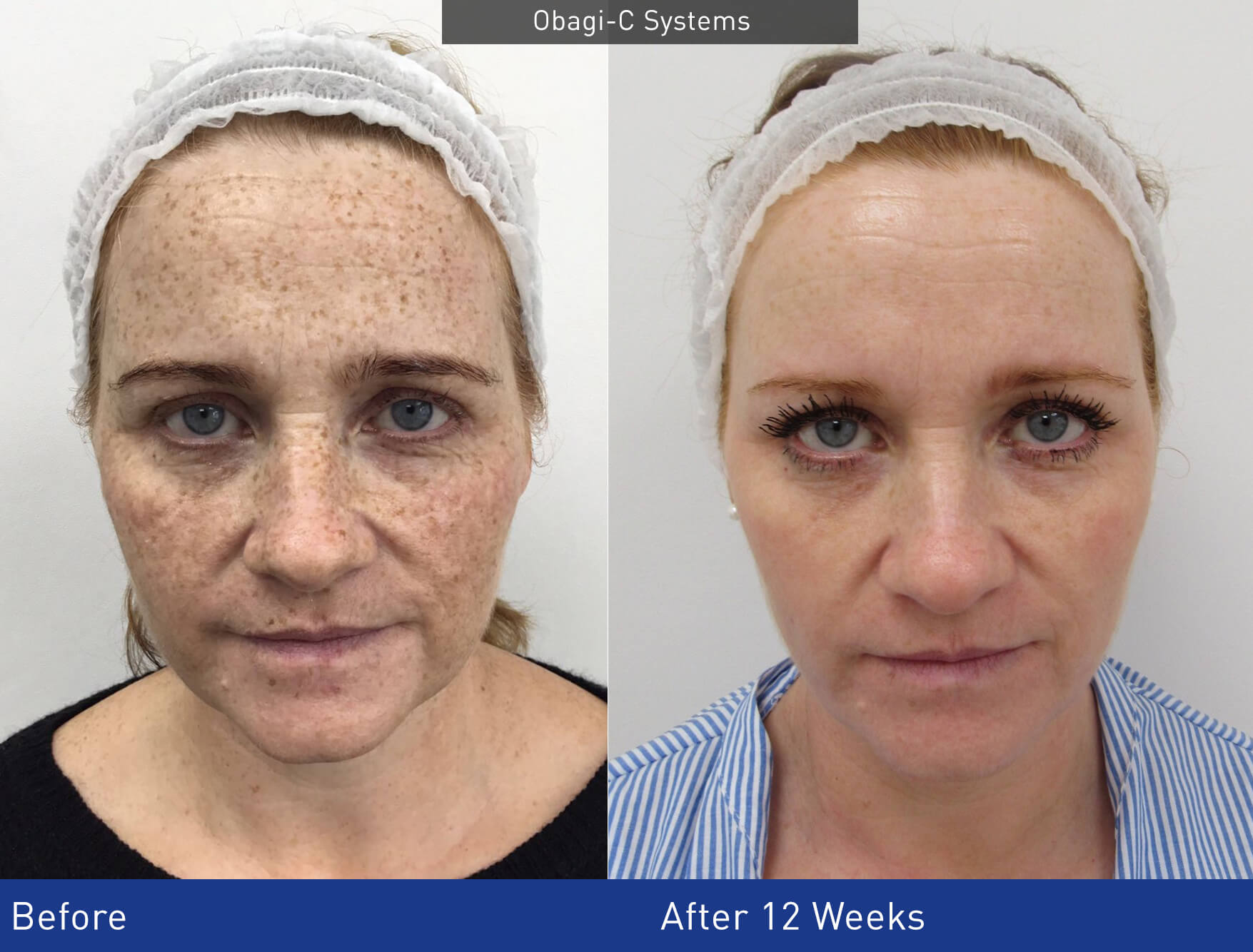 Obagi-C RX treatment