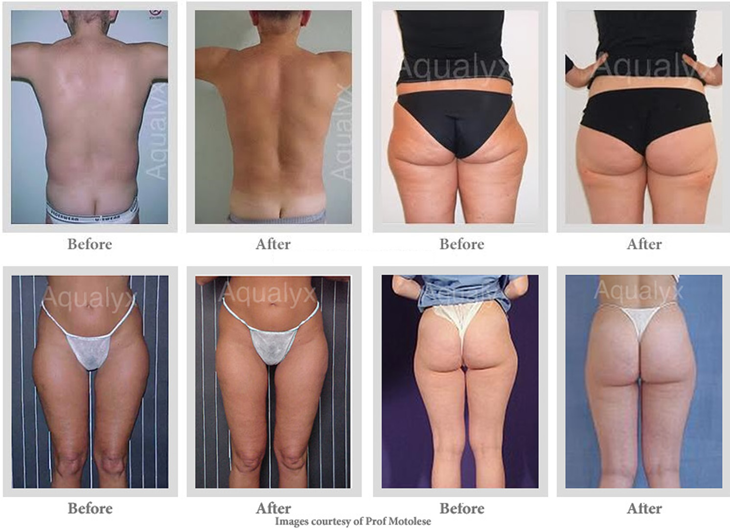 Aqualyx Fat Treatment