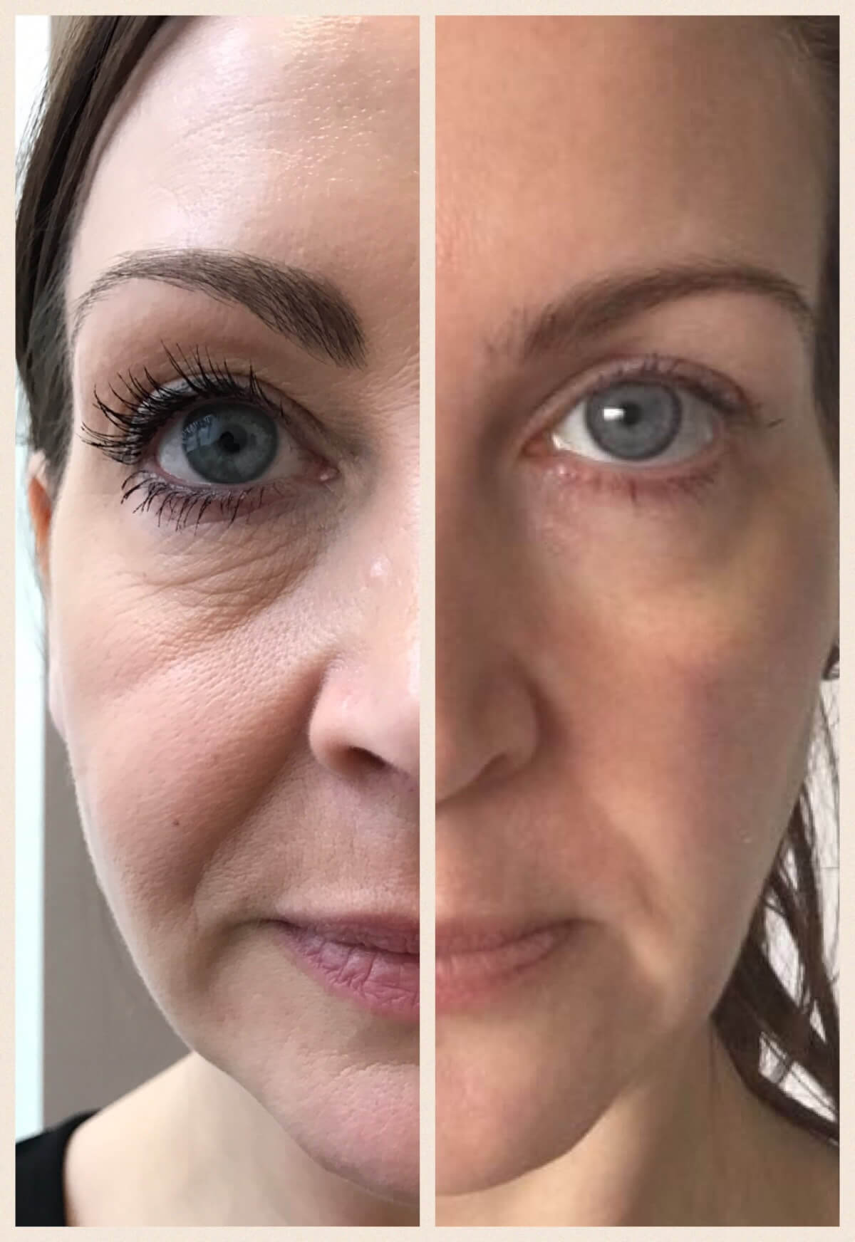 Face Contouring In Leeds | Dermal Fillers | Face Perfect Clinic