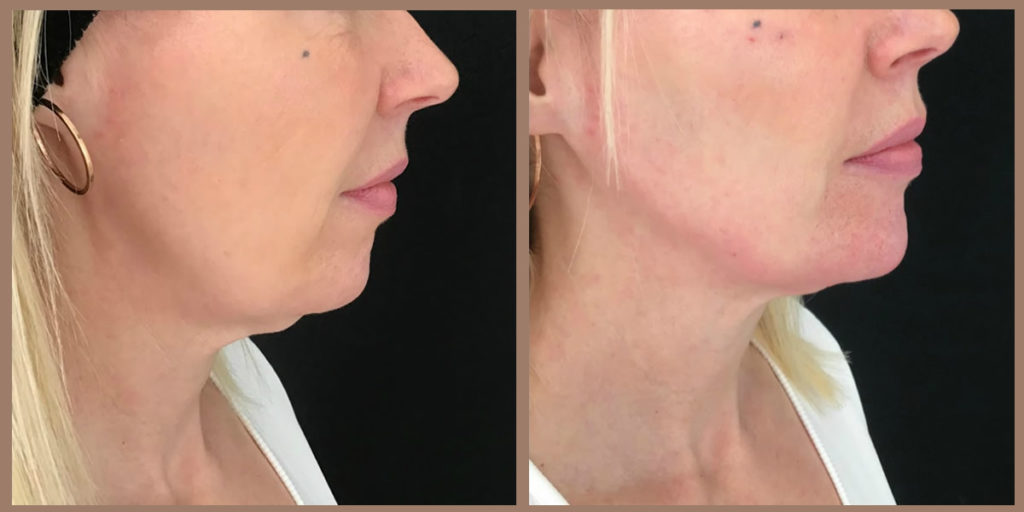jaw fillers before and after