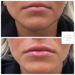 lip fillers 3