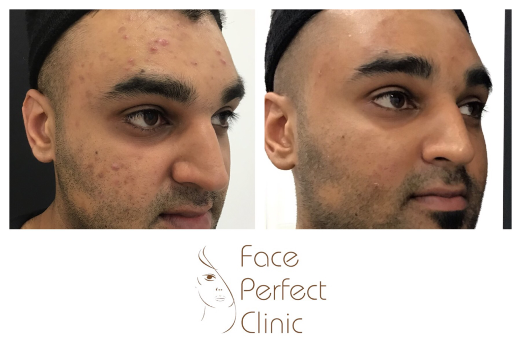 Obagi-Clenziderm-before-after