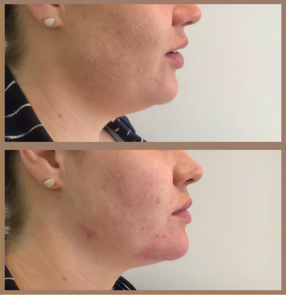 juvederm volux before and after